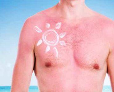 солнечный ожог-причины-лечение-профилактика