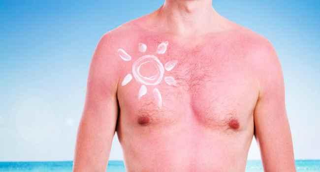 Солнечный ожог кожи: чем мазать в домашних условиях? Первая 6