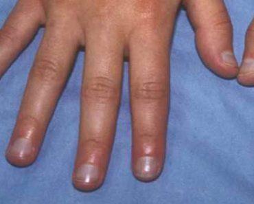 диагностика по ногтям-о чем могут расказать ногти