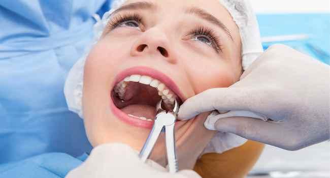 что можно и нельзя делать после удаления зуба-рекомендации