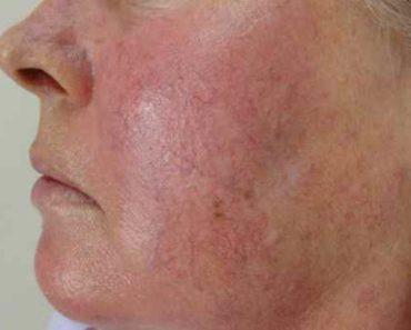 купероз на лице-лечение в домашних условиях