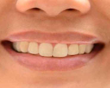 как восстановить зубную эмаль-в домашних условиях