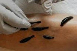 гирудотерапия-что лечит польза и вред
